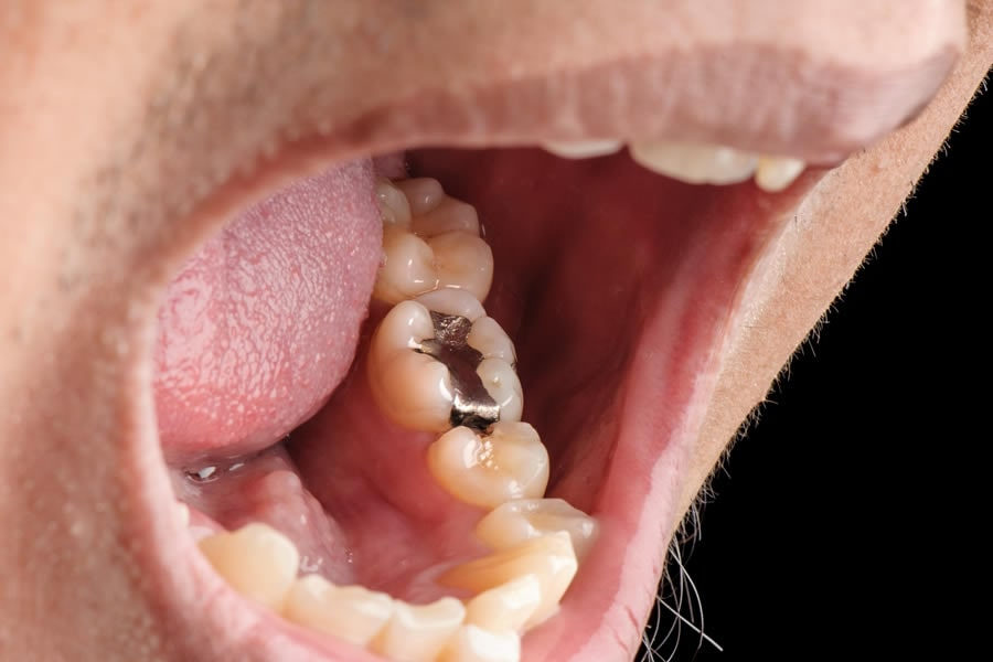 Amalgam Fillings are made of 50% Mercury (Photo: Adobe Stock)